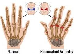 Reumatoid-artrit