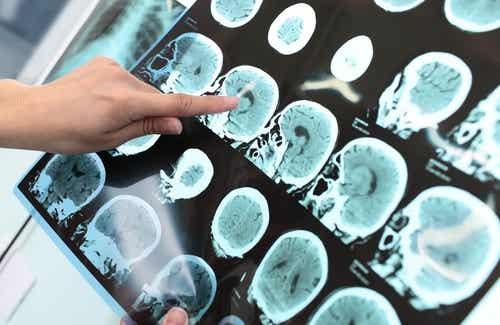 Kan man förebygga Alzheimers, och i så fall hur?