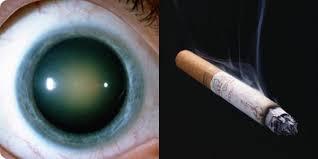 Rökare löper högre risk för grå starr
