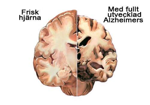 Alzheimers: upptäck de första symtomen i tid