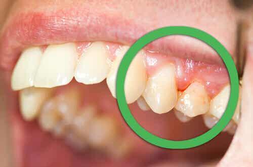 Blödande tandkött och lösa tänder - naturliga botemedel