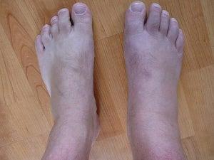 Fötter-1