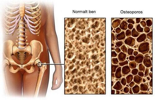 En diet för att förebygga osteoporos