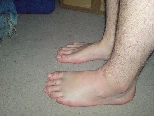 Retention i fötterna