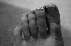 Missfärgade tånaglar