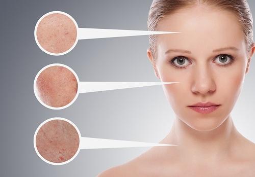 Hemmagjord behandling för din hud