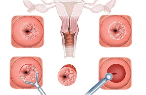 Livmoderhalsinflammation