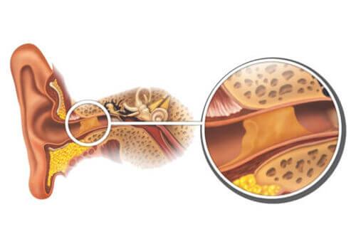 vaxpropp i örat symtom