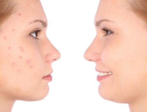 bli av med acne naturligt