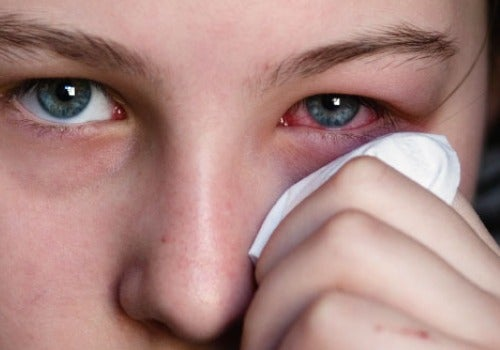 Allergier kan leda till röda ögon