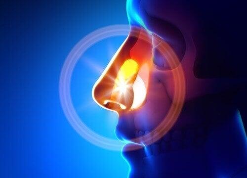 Behandla bihåleinflammation naturligt