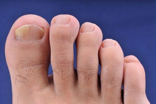 Huskurer för onykomykos (händer & fötter)