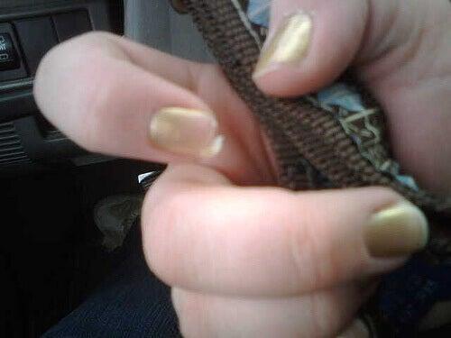Flagnande naglar