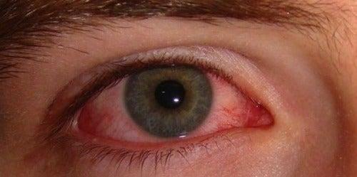 röda ögon trött