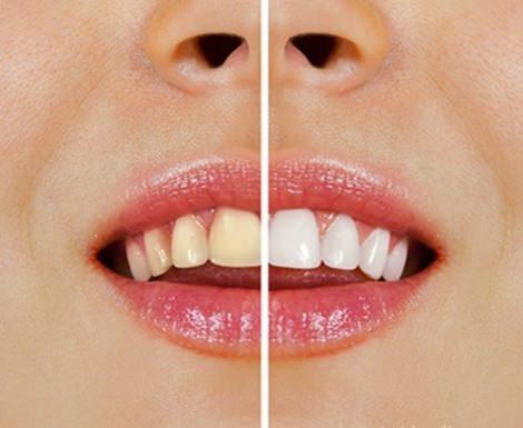 tandkräm för vitare tänder