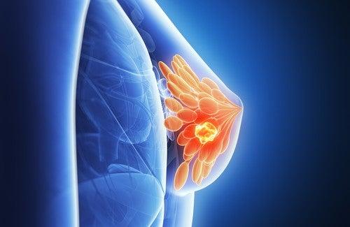 Hur kan bh-användning leda till bröstcancer?
