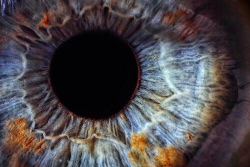 gul hud runt ögonen