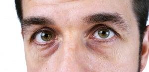 gula ögonvitor levern