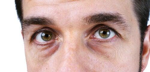 insjunken under ögonen