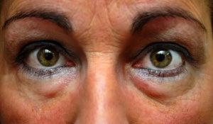 vit under ögonen