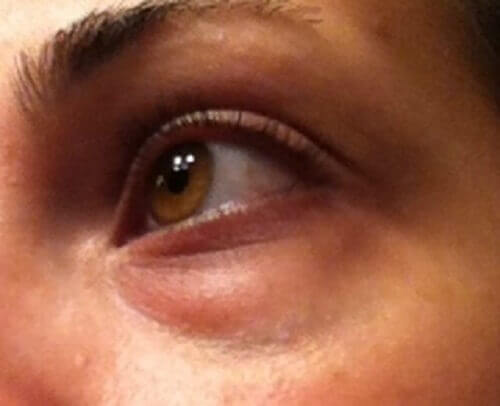 minska påsar under ögonen