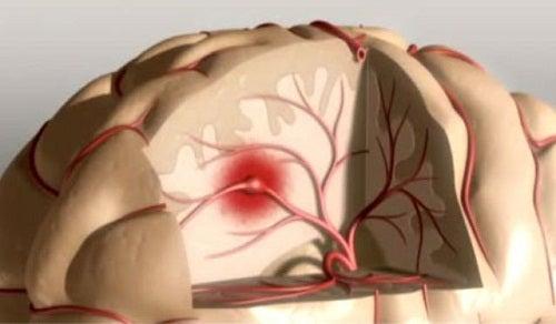 Tips för att förebygga stroke