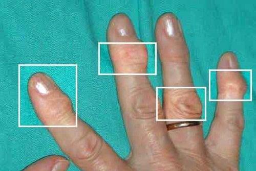 Naturliga behandlingar för artrit