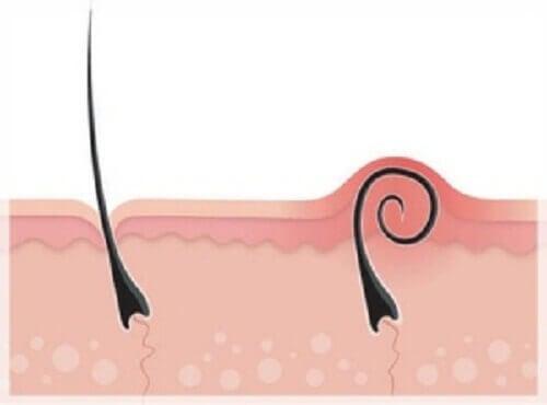 Inåtväxta hårstrån: hur du behandlar och förebygger dem
