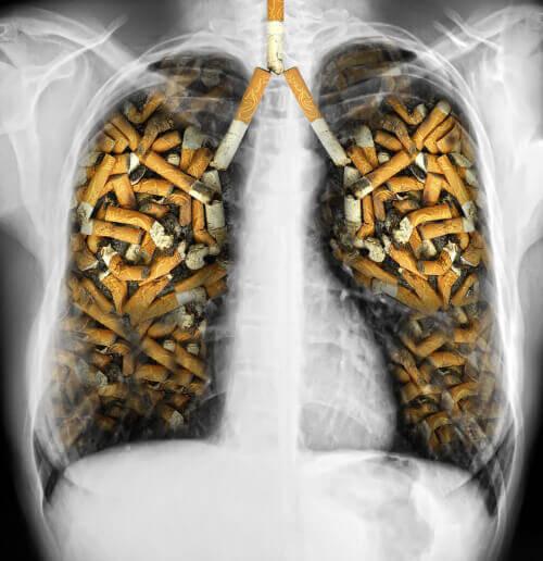 Rökning skadar dina lungor