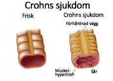 Crohns sjukdom