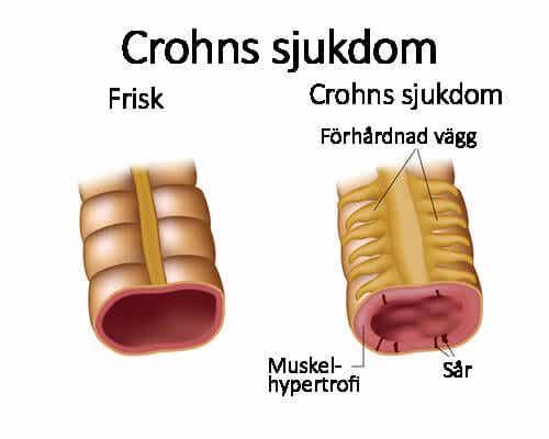 Symtom på och behandling av Crohns sjukdom