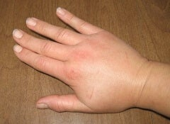 Svullen hand