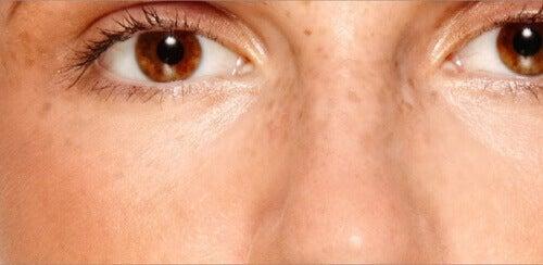 Hur du minskar eller tar bort skavanker i ansiktet