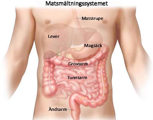 Crohns sjukdom är en irritation i en del av mag-tarmkanalen