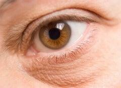 påsar-under-ögonen