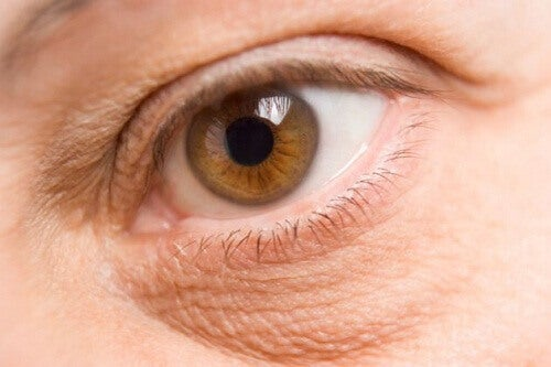 Hur du minskar eller blir av med påsar under ögonen