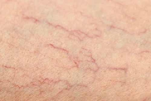 Effektiva kurer för spindelvener på dina ben