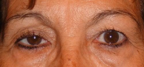 Naturliga huskurer mot hängande ögonlock