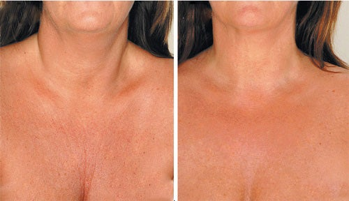 Bröstrynkor