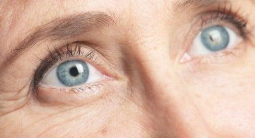 Ögonrynkor