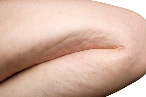 Naturliga anti-cellulitbehandlingar och andra tips