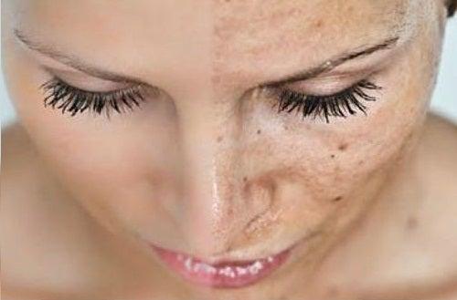 Gifter i kroppen kan leda till förtidsåldrande