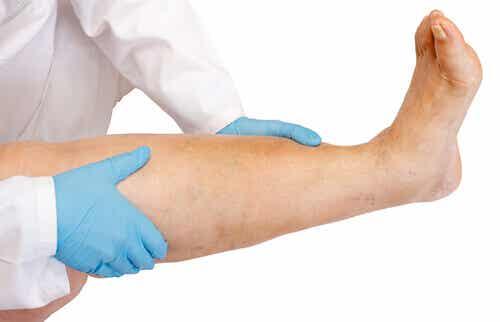 Svullna ben: orsaker och behandlingar