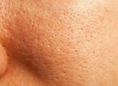 Porer