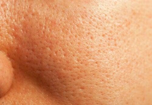 små hål i ansiktet