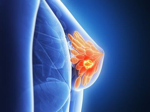 bröstcancer2