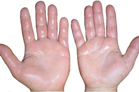 svettiga händer