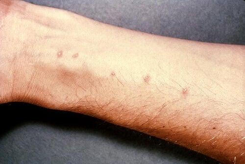 Orsaken till dessa röda prickar på handlederna är inte känd.