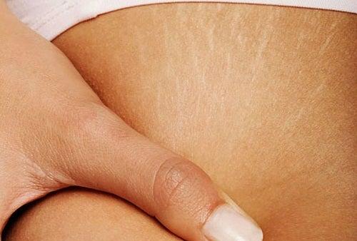 Kan jag bli av med hudbristningar?