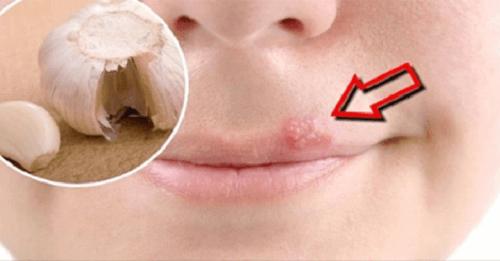 Huskurer för att läka munsår snabbt